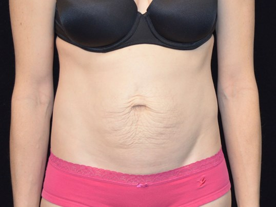 Tummy tuck and liposuction results for Chicago area woman